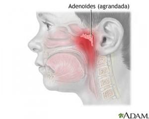 ADENOIDECTOMiA-300x240.jpg