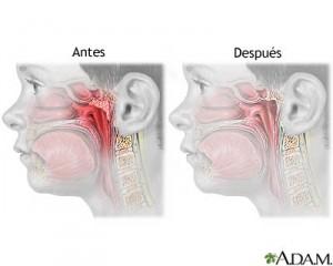 Adenoidectomia2-300x240.jpg