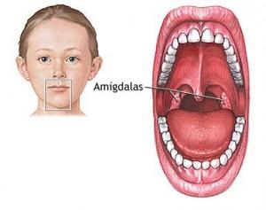 amigdalas1-300x237.jpg