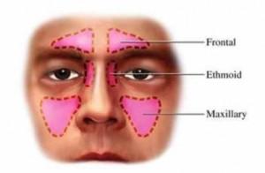 Cirugia-endoscopica-nasosinusal-bilateral-300x196.jpg