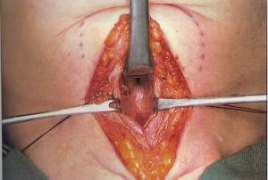 cordectomia-300x202.jpg