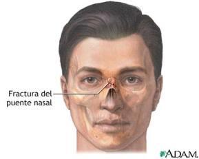 fractura-de-tabique-nasal.jpg