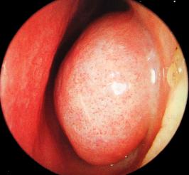 Hipertrofia-de-cornetes.png