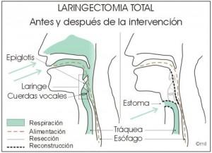Laringectomia-total-300x217.jpg