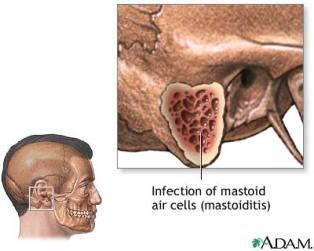 mastoiditis.jpg