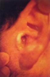 Oido-externo-Patologia-inflamatoria-Otitis-externa-2-197x300.jpg
