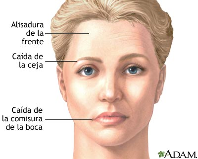 paralisis-facial.jpg