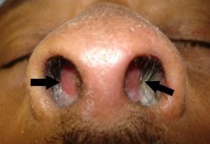 septal-hematoma-300x206.jpg