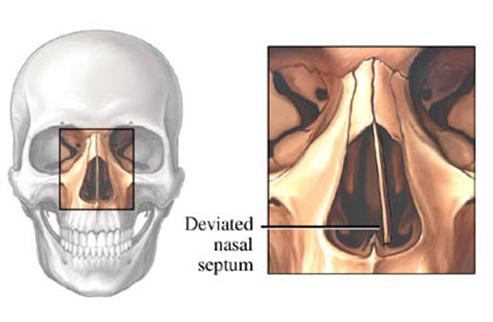 tabique-nasal-desviado.png